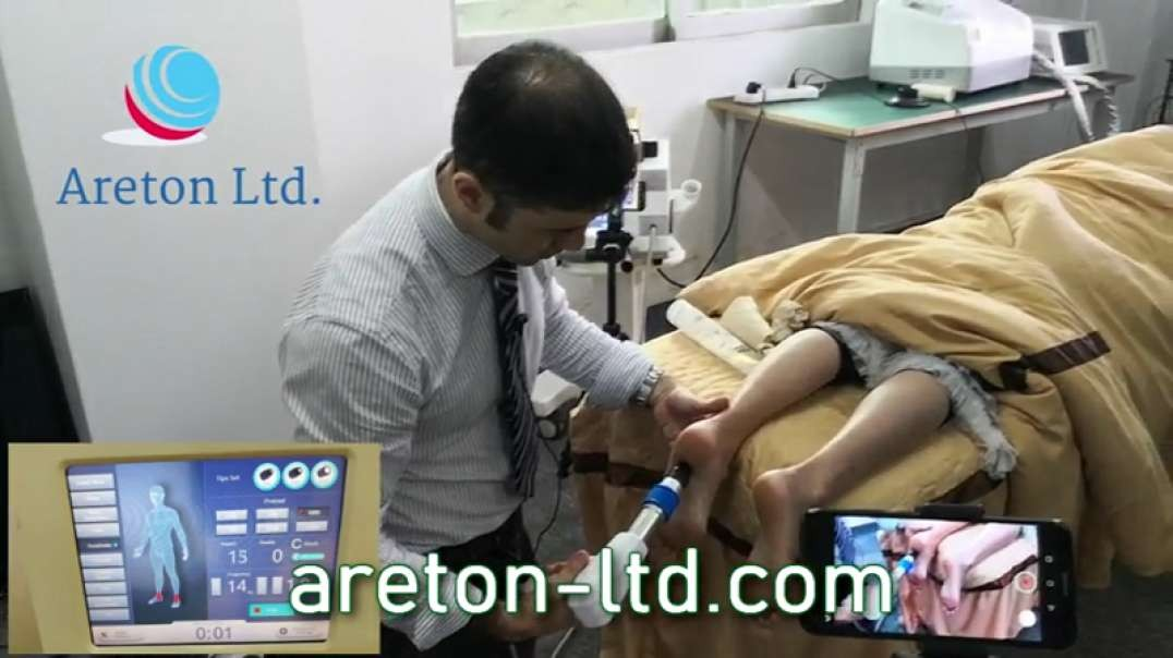 Complete treatment of plantar fasciitis of the foot with the shock wave device.mp4